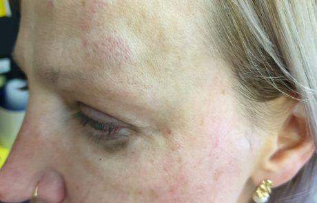 אחות בהדסה עין כרם הותקפה באכזריות בחדר המיון
